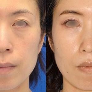 中顔面リフト後2年と2か月