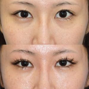 目の下のクマの美容外科治療後の患者満足度評価