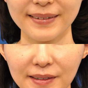 咬筋縮小とフェイスライン引き上げの為のボトックスビスタ注射のコンビネーション治療