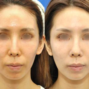 フィラー注入で抜歯後の顔のやつれ感を修正
