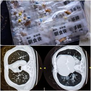 薬の副作用と肺炎の因果関係について。