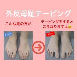 外反母趾の足の方がテーピングでここまで変わる