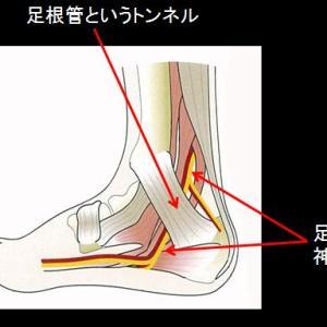膝の痛み...人それぞれ