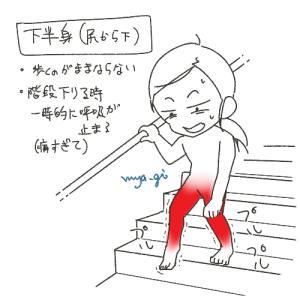 筋肉痛の話