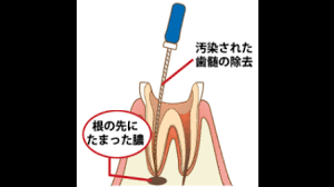 感染根管治療7「根管充填材除去①(概要・問題提起)」