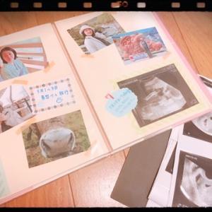 感熱紙だから消えちゃう?赤ちゃんのエコー写真をどう残す?