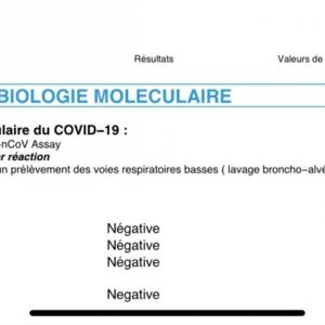 COVID-19検査した結果。