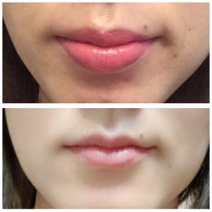 唇の形ビフォー☆アフター☆