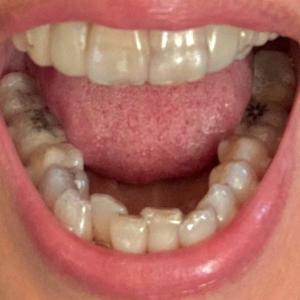 歯列矯正とインプラント11 21-4と5