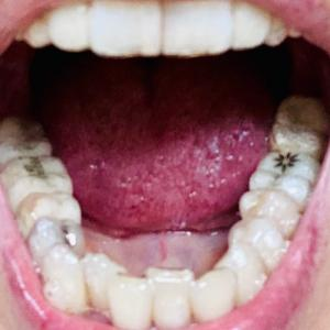 歯列矯正とインプラント12 21-6と7