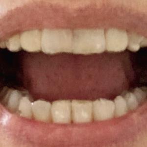 歯列矯正とインプラント 21②-21