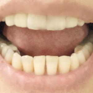 歯列矯正とインプラント 21② 完了しました。