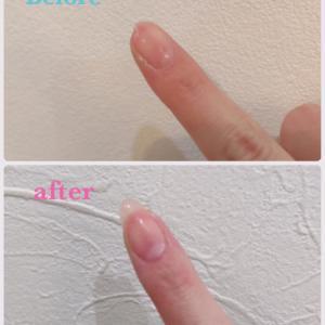 折れて短くなった爪も復活! #草加市