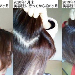 白髪染めを長持ちさせるためにしている4つのこと