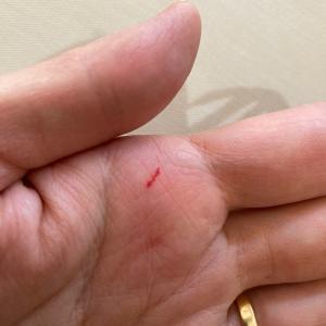 クレイで止血。絆創膏なしで。