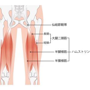 ◆座りすぎには本気で注意!坐骨神経痛になった!