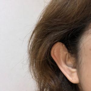 【きこいろ】片耳難聴の情報・コミュニティサイト