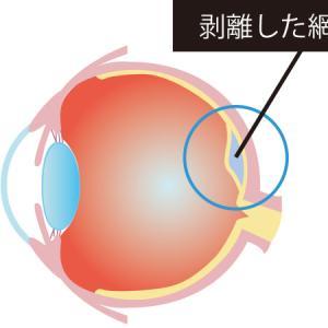 【眼底検査の不安をブロック解除】20代で網膜剥離の手術と処置を受けました