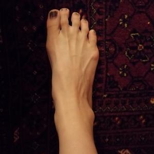 私の足は変なのか?