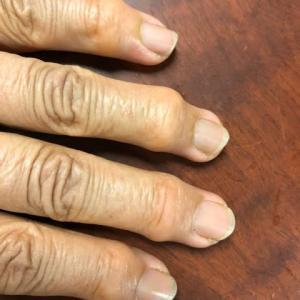 私の指 へバーデン結節