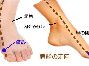 ☆原因不明!なぜか足指が痛い…