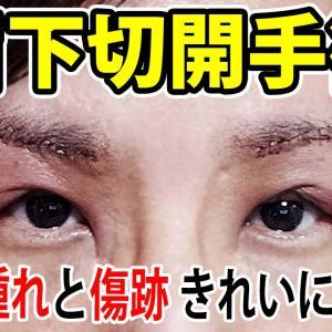 眉下切開1年5ヶ月後の傷跡(病院選び・失敗例・料金)【眼瞼下垂】