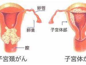 子宮がんになったときの心境
