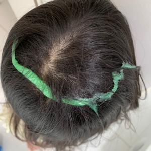 スライム事件隠蔽。自分で髪を切った娘。