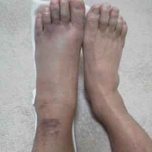 足首の骨折