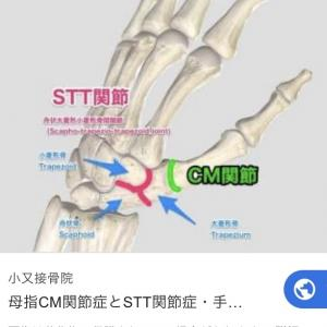 STT関節症