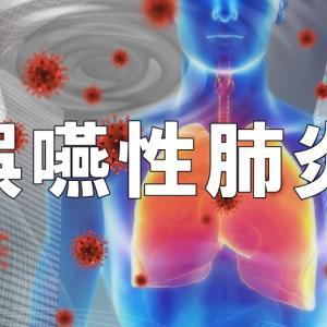 口腔内に起きる疾患 誤嚥性肺炎