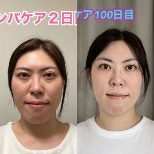 セルフケア100日達成!Before→After