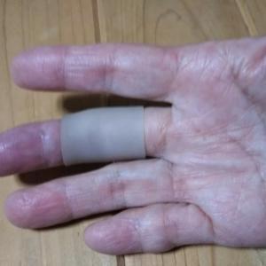 バネ指にサポーター・・・松の木剪定