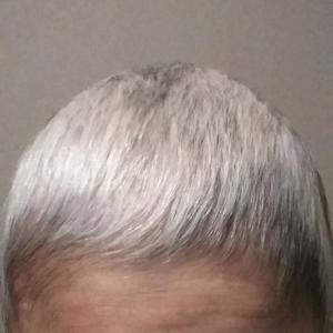 少しは密になったと思うけど・・・髪の毛