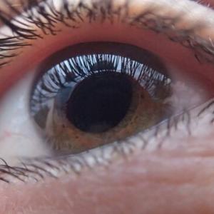 【実話】3歳くらいで失明し、40歳くらいで視力が回復した男の話