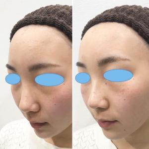 症例写真です目の下のクマ治療❣️ヒアルロン酸オールカスタマイズです。
