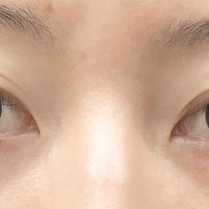 目の下の皮膚の状態が涙袋ヒアルロン酸を左右します。