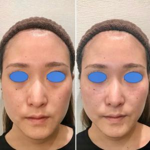 脂肪溶解注射よりもずっと短時間で一瞬でヒアルロン酸注射は小顔にできます!