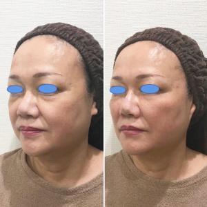 小顔ヒアルロン酸カスタマイズ治療に感動して、2回目を...