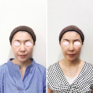 顔が小さくなった!ヒアルロン酸治療&私が自分にしている美容を動画で紹介する新シリーズ始まります!