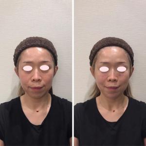 目の下のクマ治療で脱脂した方のヒアルロン酸治療のご要望が増えています。綺麗になれて嬉しい!