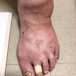 外反母趾の手術、その後の影響2