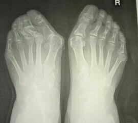 外反母趾、外反母趾手術に適した靴作成