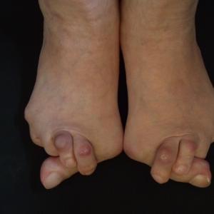 外反母趾は遺伝?