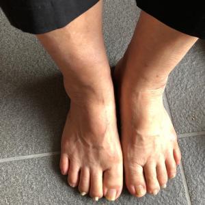 適切な靴を履いた人は少なく・・・