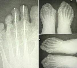 外反母趾の手術をしたことの後悔。