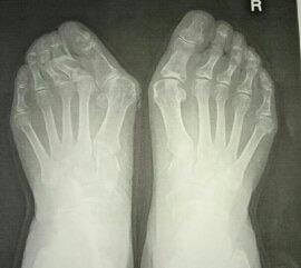 靴の木型、本当のサイズ、外反母趾、合わないの理由となること