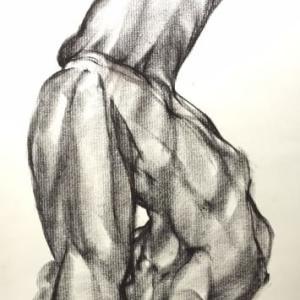 Abnormal pose