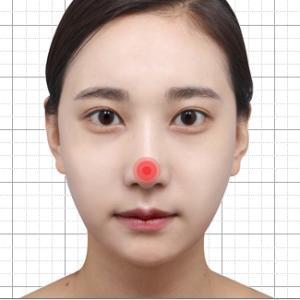 (【コノピ医院】鼻再手術、ケース別の原因と改善方法!