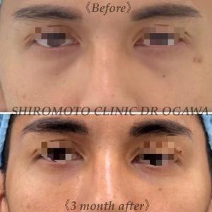 福岡院限定治療、目の下のクマ治療(経結膜脱脂+CRF+マイクロCRF)の術後3か月です。